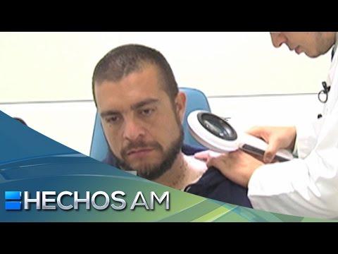 Consultorio AM | Cap 50 |Eliminación de verrugas