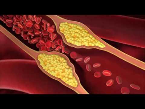 Lhypertension dans la CBI.