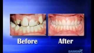 Damon System Valencia Clinica Peydro - Dr. Robledo Torres. Clínica Dental