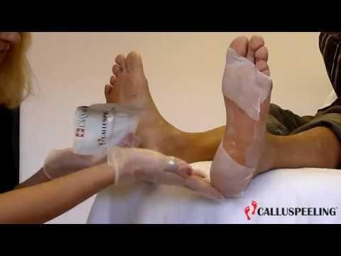 Fußpflege mit CALLUSPEELING, Hornhaut entfernen an den Füßen