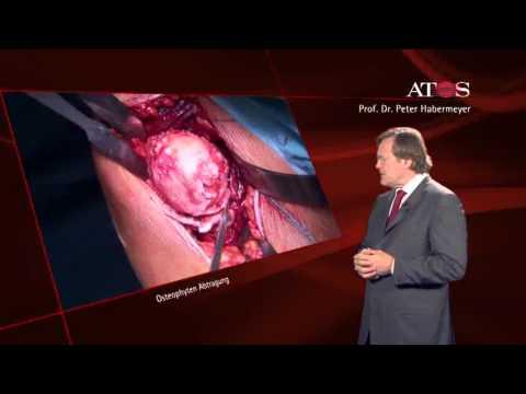 Herniation der Halswirbelsäule und Beschwerden im Hals