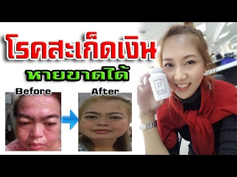 Diprospan จาก neurodermatitis