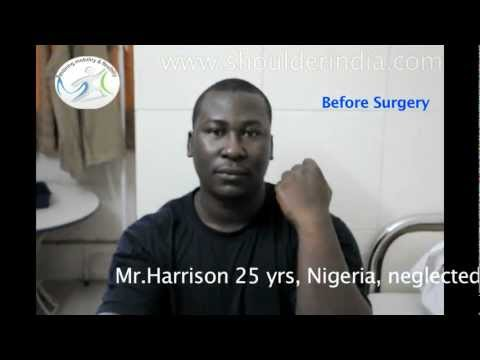 Neglected-Elbow-dislocation-surgery-in-India