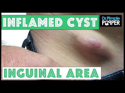 Dr. Pimple Popper: Extracting Inflamed Egg-Shaped Cyst!