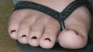 Les Fabuleux Pieds De Ma Femme Part 3fabulous Feet Of My Wife Part 3