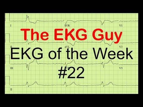 EKG of the Week #22