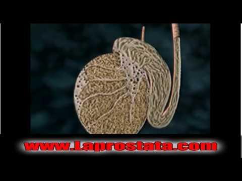 Ārstēšana prostatas adenomas profilakses