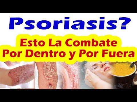 Los preparados sedativnye a la psoriasis