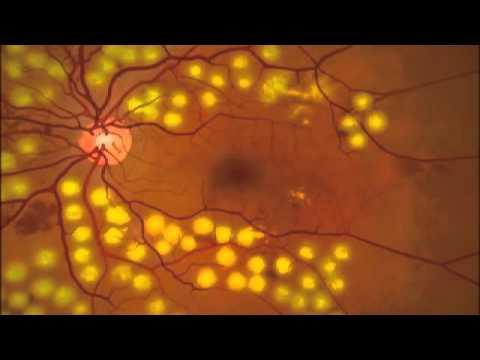 Todo acerca de la retinopatía diabética