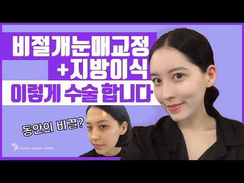 눈, 코, 안티에이징 (눈, 리프팅, 지방이식 등)