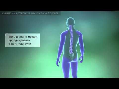 Желчь-лечение суставов