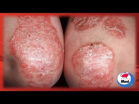 Atopichesky la dermatitis los modos públicos