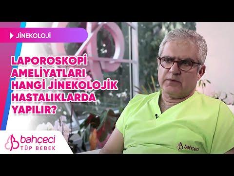 Laporoskopi Ameliyatları Hangi Jinekolojik Hastalıklarda Yapılır?