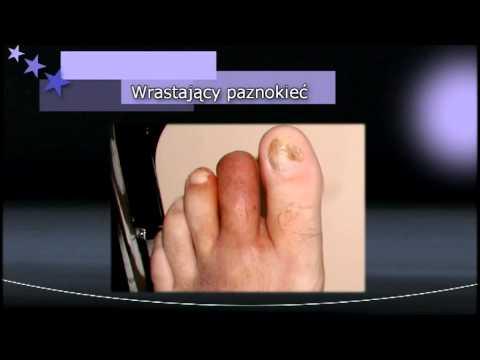 Koślawe kolana deformacji u dzieci