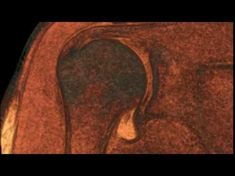 Gelenkschmerzen verursacht eine Krankheit