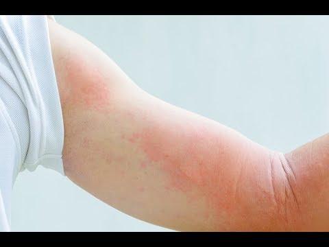 Możliwe metody leczenia łuszczycy
