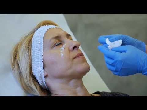 Trzeci stopień hemoroidy leczenie