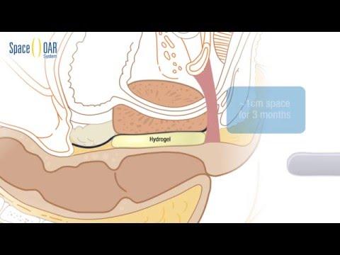 Die Vorschläge für die Behandlung von Prostata-Massage