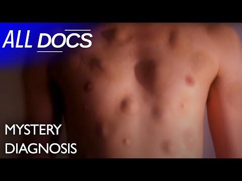 Lipóma (zsírdaganat) tünetei és kezelése