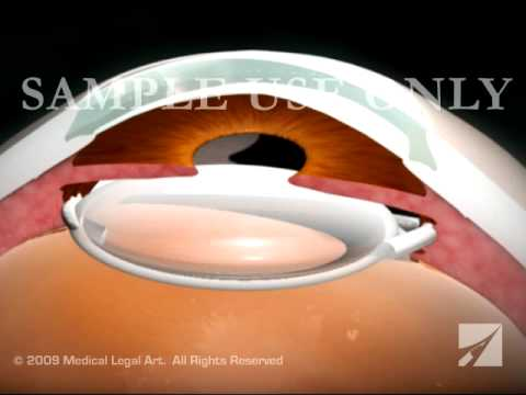 Eye Surgery- Cataract With Lens Replacement