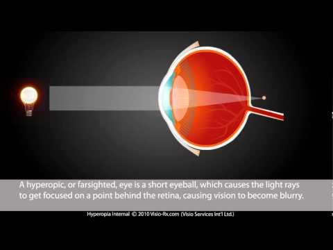 Van egy mínuszom, visszaállíthatja a látást