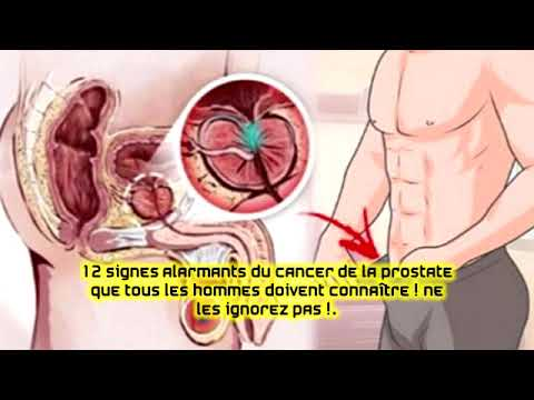 Du secret de la prostate quil est