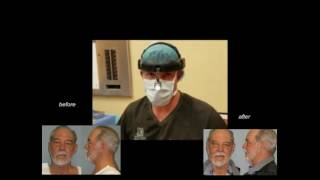 Dr. Mark Jabor - Upper & Lower Blepharoplasty (eyelid surgery)...