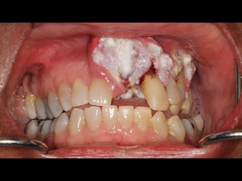 Woman's Mouth Cancer Goes Ignored by Dentists for Years