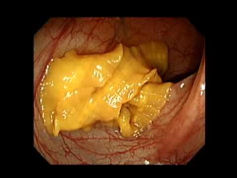 Trichocephalosis diagnózis készítmény