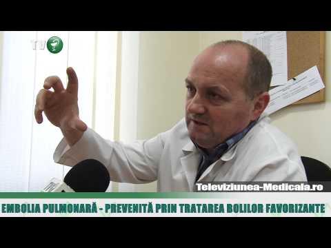 Articulațiile artrozei doare cum se tratează