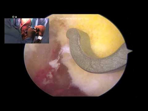 Rekonstrukcja więzadła krzyżowego przedniego z oszczędzeniem chrząstki wzrostowej
