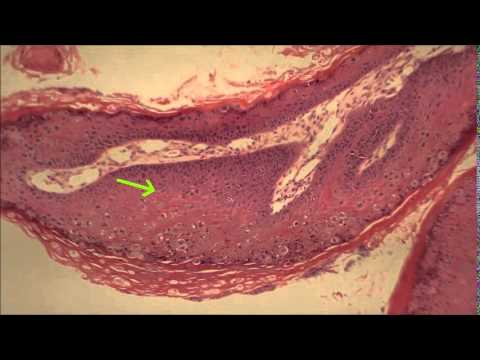 Hpv herpes and pregnancy