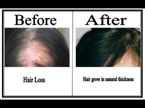 Optima hair oil