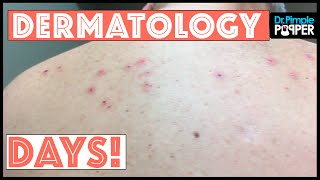 Just a Day in the Life of Dr Pimple Popper: DermDays