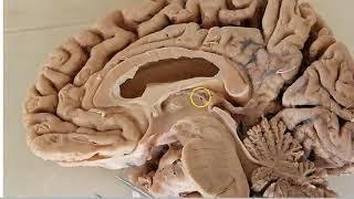 Diencephalon Anatomy