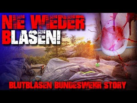 NIE WIEDER BLASEN - Bundeswehr Blutblasen Story - Malerweg - Outdoor Trekking Survival Bushcraft