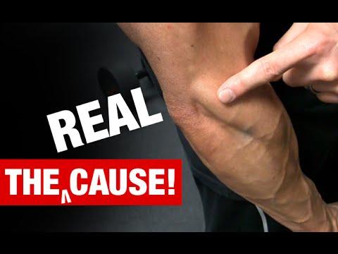Tablette gegen Schmerzen in Gelenken und Muskeln