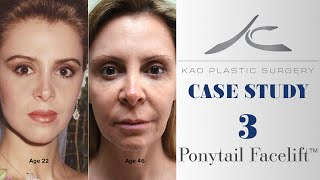 Case Study 3: Zonia (Ponytail Facelift™)