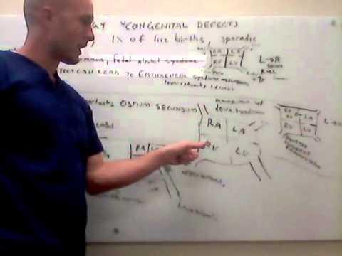 Essay über die Genetik der Hypertonie