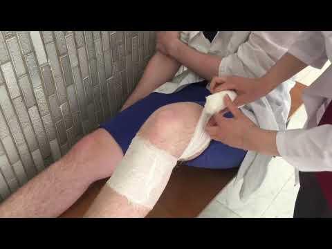 Ост коленного сустава