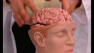 Инсульт - симптомы и причины, способы лечения. Первая помощь при инсульте