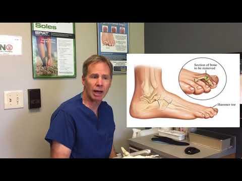 Ujjízületi fájdalom kezelést okoz