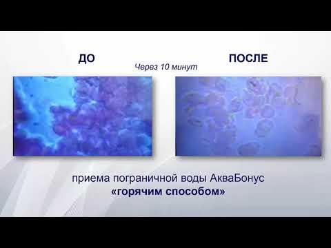 Количество паразитов в человеке