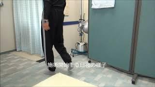 ブロック注射とトラムセットが全く効かない脚の痛みの改善|愛知県江南市の整体院爽快館