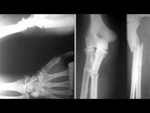 Супер рецепт для ускорения сращения костей после перелома,