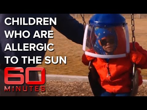 Meet the kids allergic to the sun - Children of the Night | 60 Minutes Australia