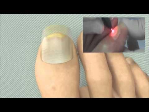 Que curar la cortadura en las uñas