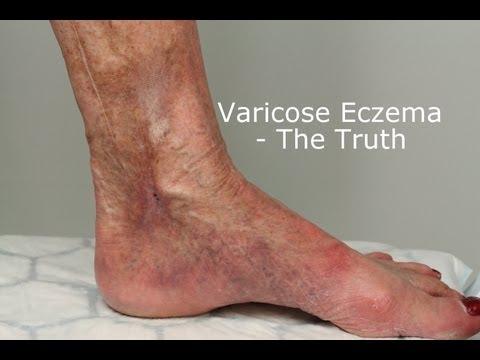 Che togliere un prurito a eczema varicoso