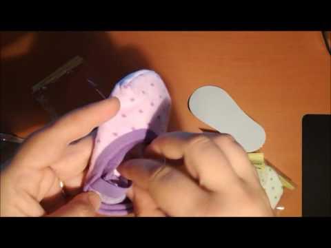 La condizione valgusny di piede a neonati