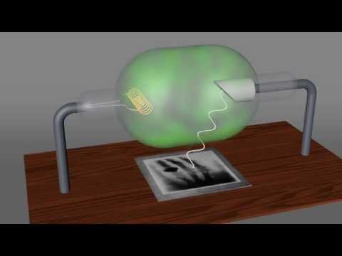 Neck richtige Behandlung Osteochondrose